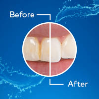 Waterpik Whitening